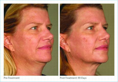 Ultherapy skin tightening Dr Varano Washington DC & Virginia